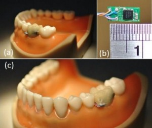 sensor dente